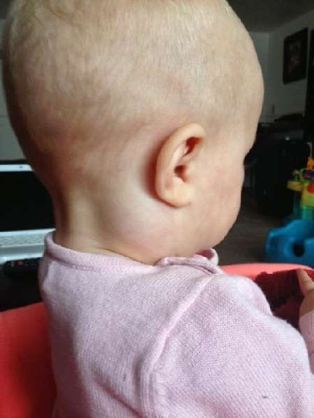 Диагностика уплотнений за ухом у ребенка.