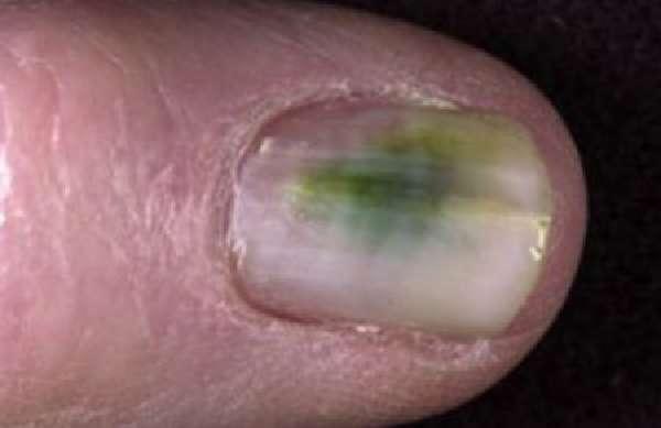 Проявленияна ногтевых пластинах
