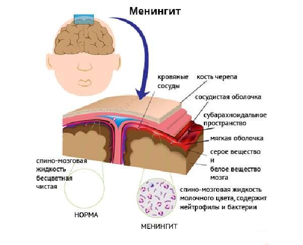 Общеитоксикационный и общемозговой синдром