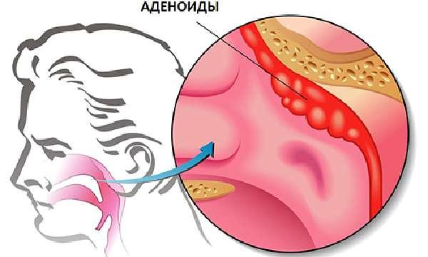 Гипертрофия глоточнойминдалины