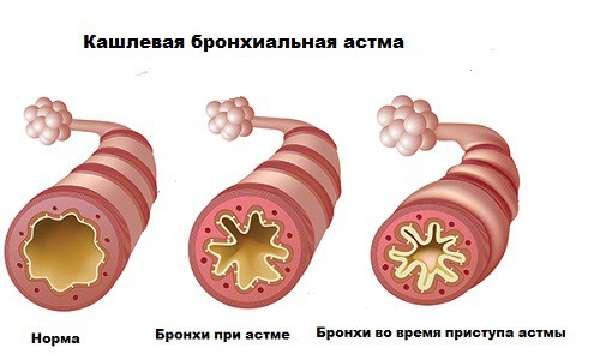 Изменения в бронхах при астме