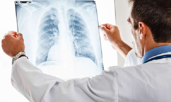 Диагностика пневмокониоза