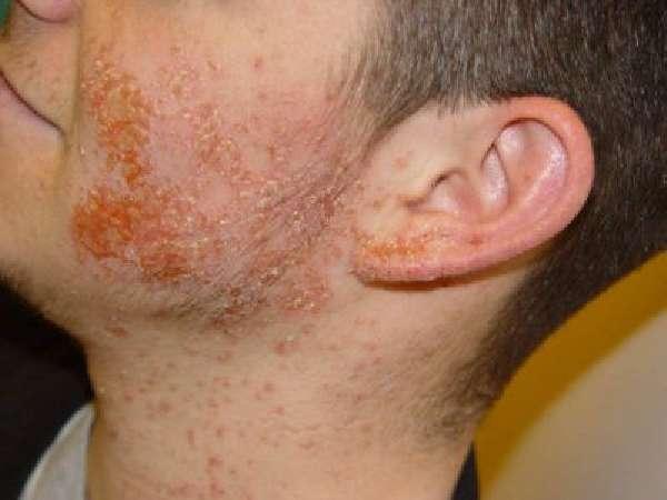 В чем опасностьпатогена?