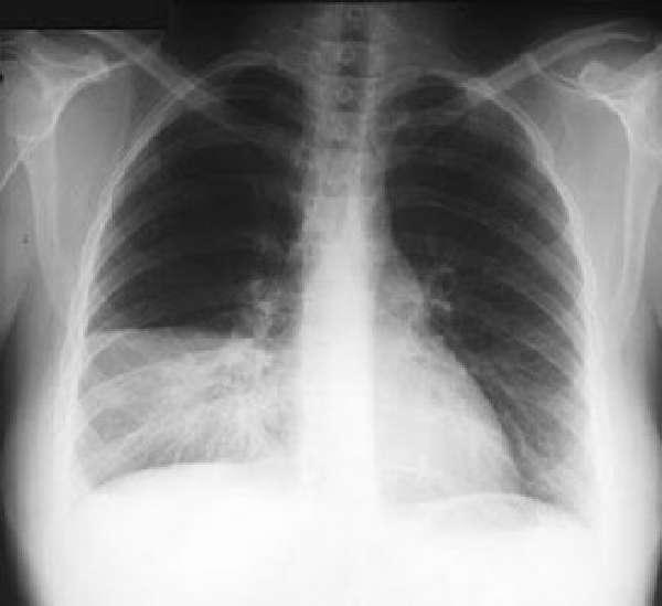Долевая пневмония на рентгеновском снимке