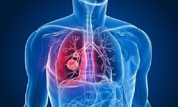 Проблема жидкости в легких