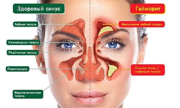 Симптомы заболевания и зубная боль как одна из возможных причин