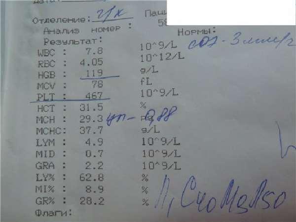 Информативные исследования крови фото
