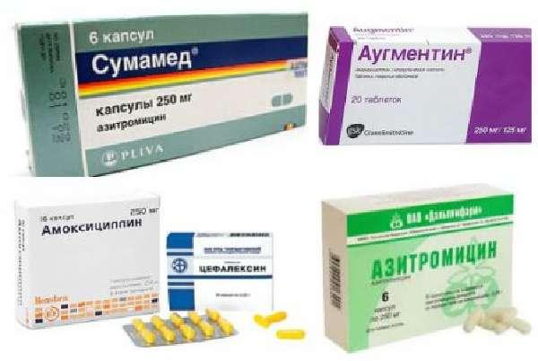 Лечение стрептококка