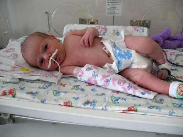 Пневмония у младенца
