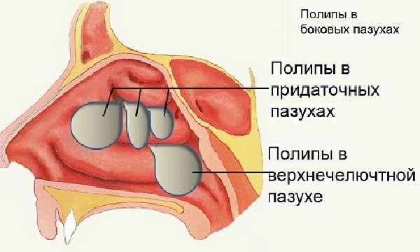 Острая формаринита