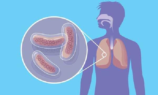 Проблема туберкулеза
