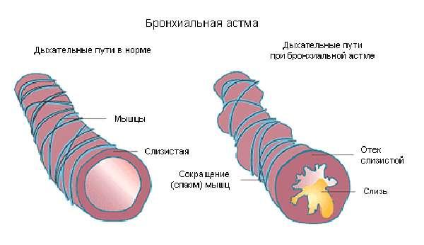 Главные обследования в диагностике и лечении бронхиальной астмы
