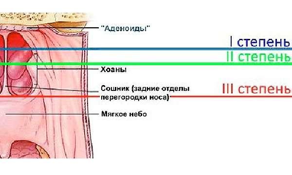 Степени развития воспалительного процесса