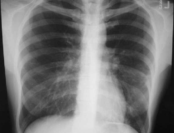 Этиология и патогенез внебольничной пневмонии