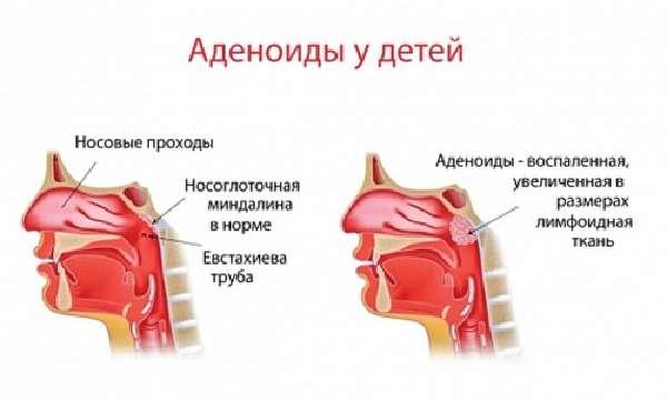 Схема аденоида