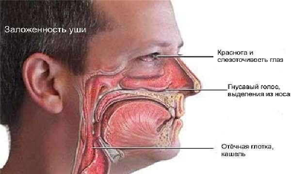 Что такое аллергическийринит?