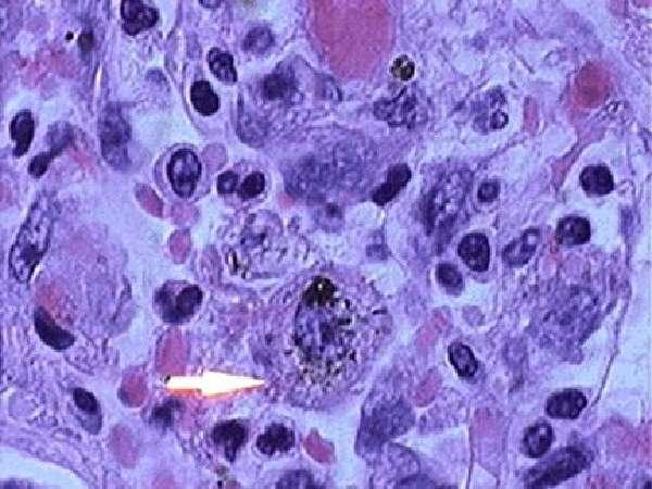 альвеолярные макрофаги