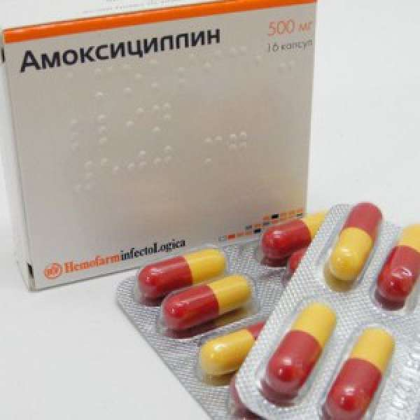 Этиология и патогенез внебольничной пневмонии фото