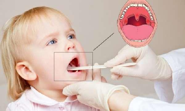 Визуальная диагностика ангины