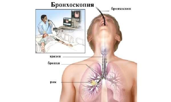 Клиническая картина фото