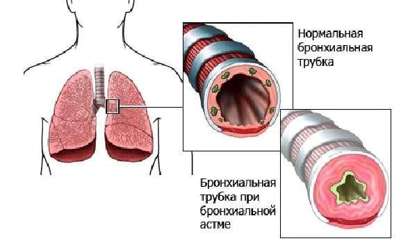 Сущность бронхиальной астмы