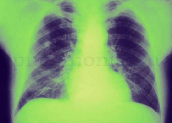 деструктивная пневмония на рентгеновском снимке