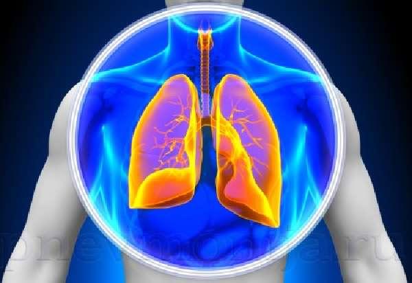 двухсторонняя пневмония