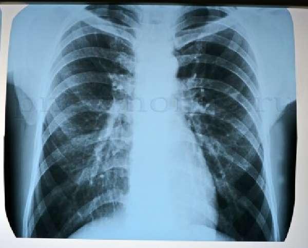 Симптомы и диагностика сливной пневмонии фото