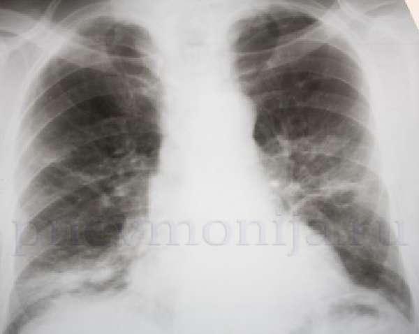 Симптомы и диагностикаочаговойформы фото