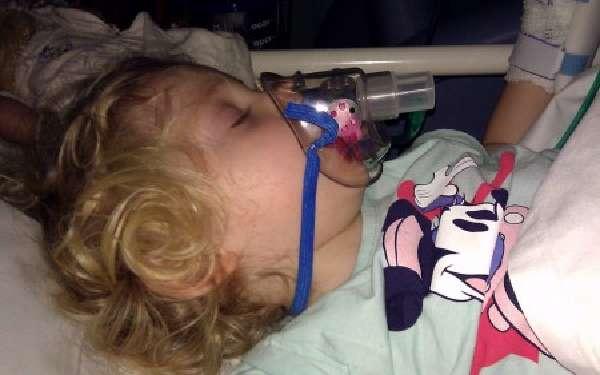 двусторонняя пневмония у ребенка