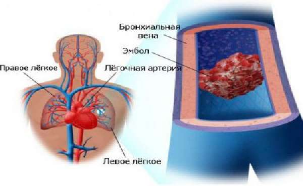 Классификация формпатологии