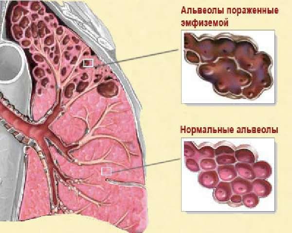Острая эмфизема легких