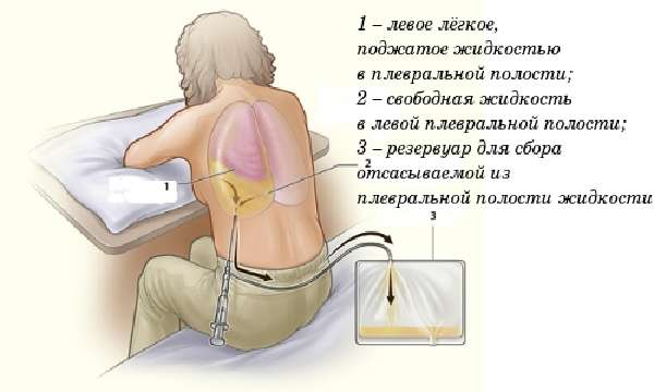 Тактика лечения патологии