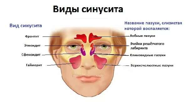 Аденокарцинома лёгкого: стадии, лечение и прогноз