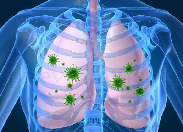 Подозрение на пневмонию или как распознать провоцирующие факторы