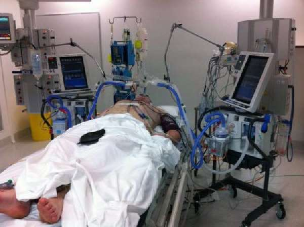 искусственная вентиляция легких при пневмонии