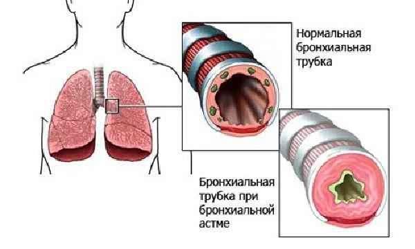 Схема бронхиальной астмы
