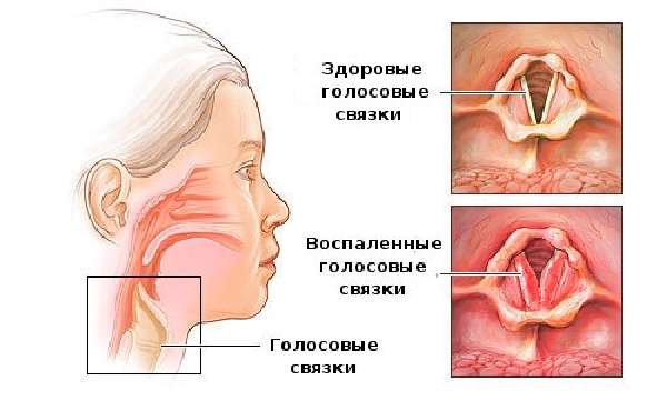 Причины и симптомы тонзиллитау детей фото