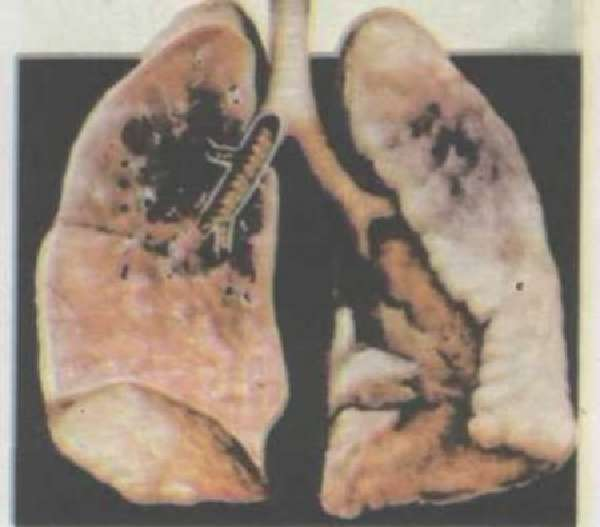 лучевая пневмония