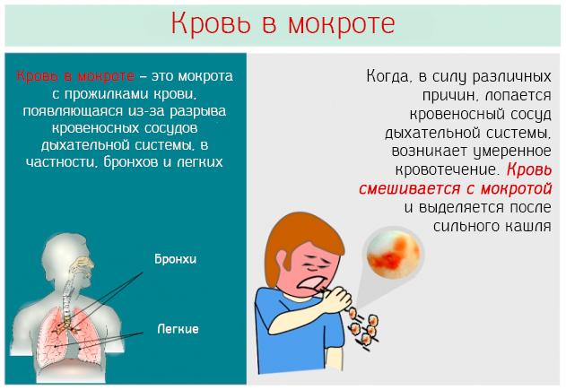 Причины крови в мокроте