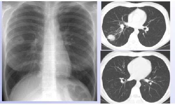 Туберкулома легких на рентгене