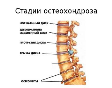 Патологии и травмы позвоночника