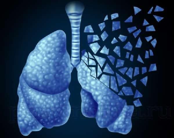 параканкрозная пневмония - опасное осложнение рака легких