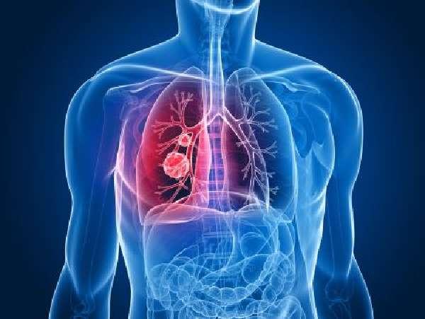 пневмония при онкологии