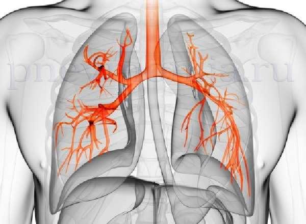 правосторонняя пневмония возникает чаще левосторонней из-за анатомического строения легких