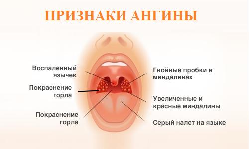 Причины появления ангины