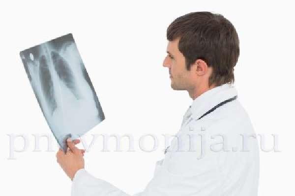 Нетипичное хламидийное воспаление легких
