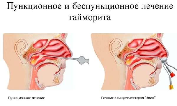 Диагностика и лечениепатологии фото