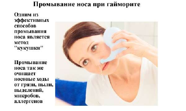 Методы лечения и тактика ведения пациента