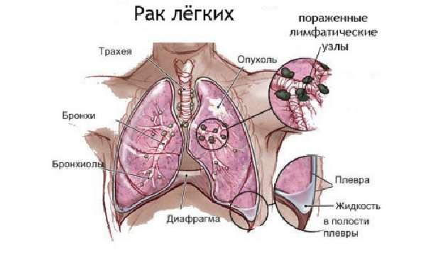 Негативное влияние курения на организм фото